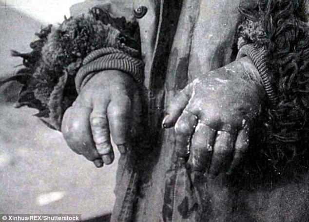 Human guinea-pigs: Frostbitten hands of a Chinese prisoner at Unit 731, where scientists would test the effects of hypothermia and gangrene on human subjects