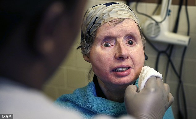 Charla Nash, 62, underwent a face transplant in 2011 after being attacked by a chimpanzee in 2009. She is back in the hospital after doctors discovered her body is rejecting the transplant. Above she is pictured in 2015