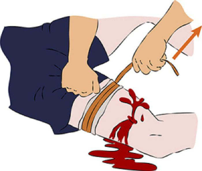 arterial and venous bleeding first aid